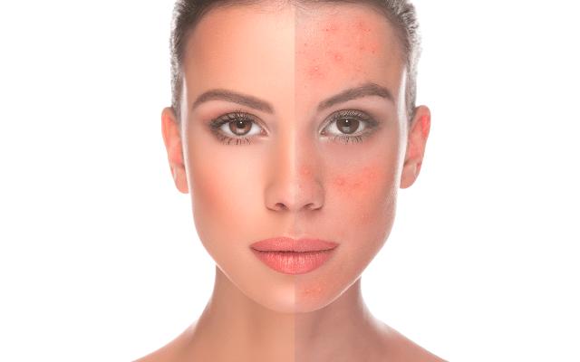 A rosacea természetes kezelése bőrmegújítással